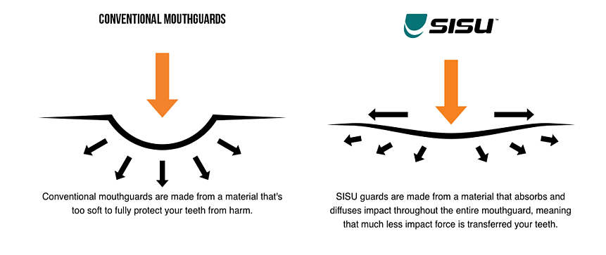SISU Mouth guard Science